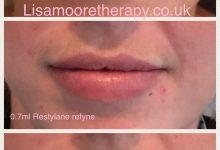 Lip Treatment before and after